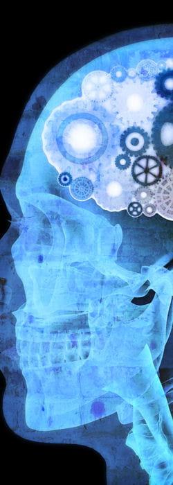 des lésions neurologiques peuvent provoquer le syndrome de l'accent étranger.