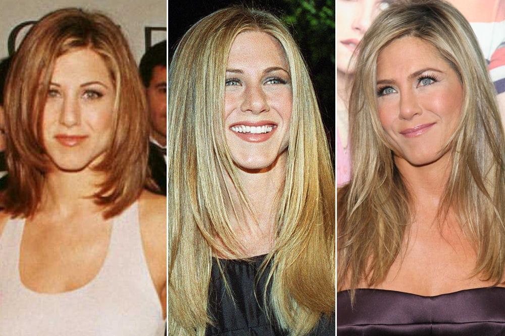 Jennifer Aniston avant et après chirurgie esthétique