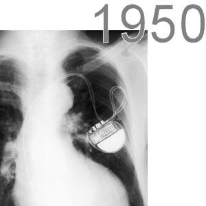 le pacemaker