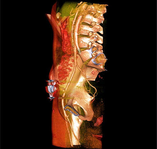Aorte